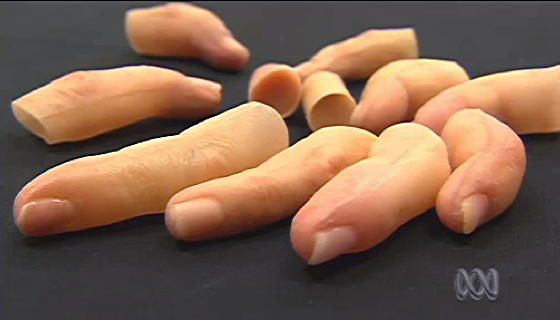 Prosthetic pinkies for digitally deficient delinquents